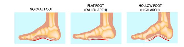 Feet arch
