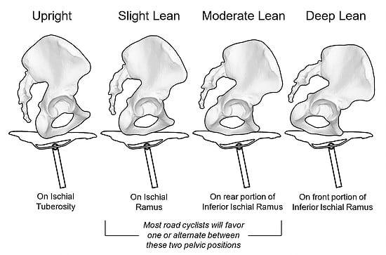 Pelvic Positions